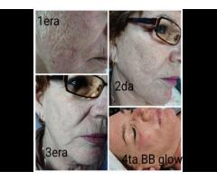 Y&Y Estética BB Glow, Dermapen, microneedle, fototerapia, mesoterapia